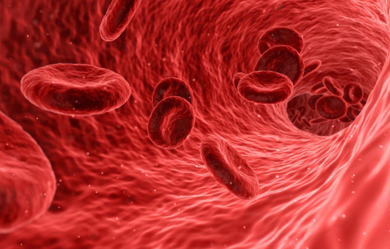 Níveis baixos de colesterol 'ruim' podem aumentar o risco de derrame em mulheres